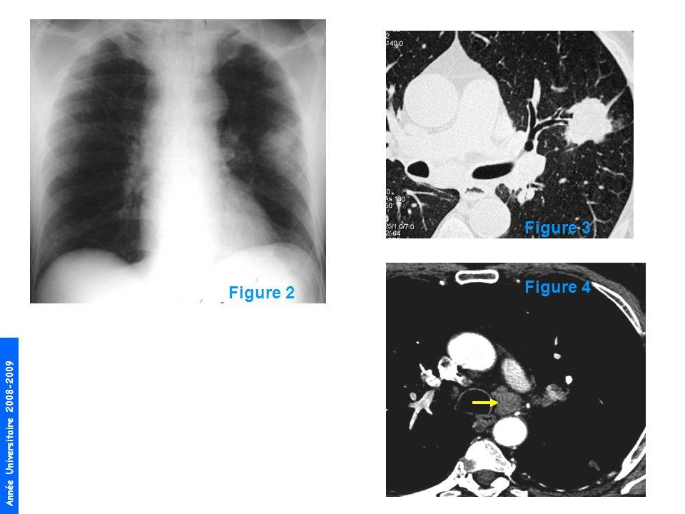 Année Universitaire 2008-2009 Dabord par des biopsies bronchiques réalisées lors dune fibroscopie bronchique, en sachant que cette lésion est périphérique et quelle nest pas forcément atteignable.
