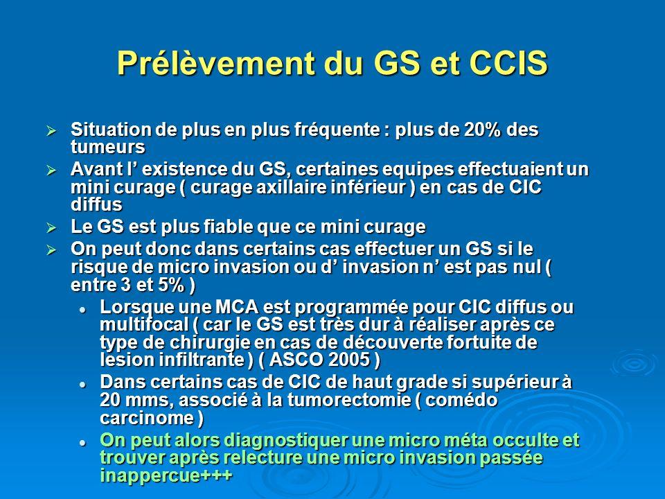 Prélèvement du GS et CCIS Situation de plus en plus fréquente : plus de 20% des tumeurs Situation de plus en plus fréquente : plus de 20% des tumeurs