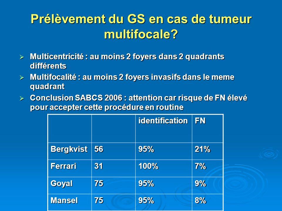 Prélèvement du GS en cas de tumeur multifocale? Multicentricité : au moins 2 foyers dans 2 quadrants différents Multicentricité : au moins 2 foyers da