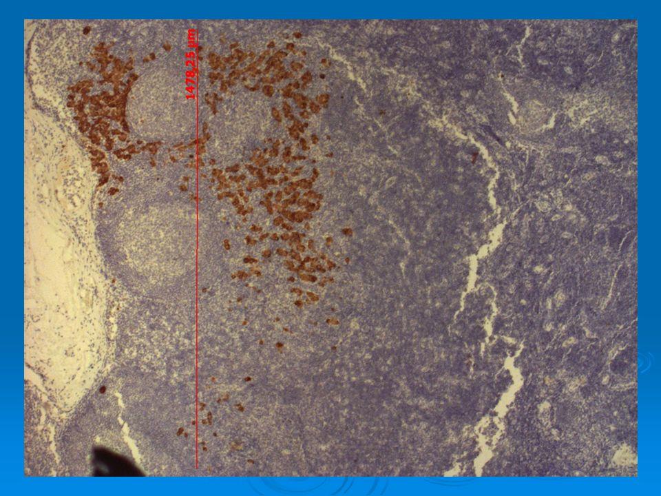 Probleme des micro metastases L extemporané des GS se fait par les techniques anapath standard et décèle les macro métastases L extemporané des GS se fait par les techniques anapath standard et décèle les macro métastases l IHC décèle les micrométastases et les cellules tumorales isolées l IHC décèle les micrométastases et les cellules tumorales isolées Il existe quelques equipes proposant l IHC en examen extemporané ( Véronesi à Milan ) Il existe quelques equipes proposant l IHC en examen extemporané ( Véronesi à Milan ) La généralisation de la procédure sentinelle a induit une modification de la stadification TNM par l AJCC depuis 2003 La généralisation de la procédure sentinelle a induit une modification de la stadification TNM par l AJCC depuis 2003 GS + en IHC ( <0.2 mms ) : N0(i+) GS + en IHC ( <0.2 mms ) : N0(i+) Micro métastase ( 0.2 à 2 mms ) : N1mi Micro métastase ( 0.2 à 2 mms ) : N1mi En cas de détection de macro métastase en extemporané : il faut effectuer un CA immédiat En cas de détection de macro métastase en extemporané : il faut effectuer un CA immédiat Faut il réopérer ces malades quand l histologie définitive décèle ces micrométastases.