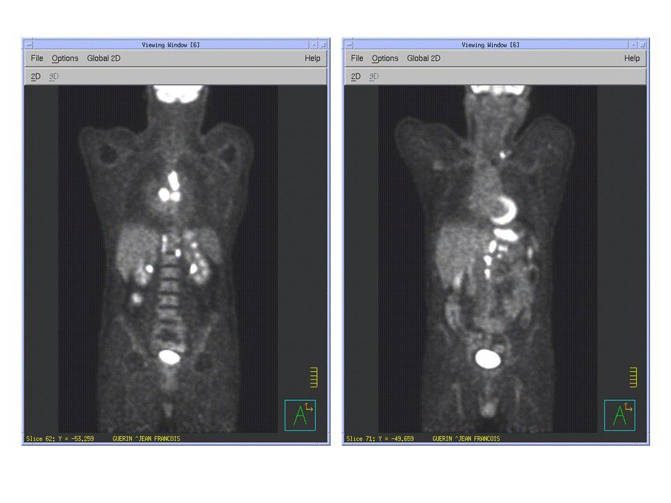 Traitement Chimiothérapie néo adjuvante par TPF (3 cures) du 29/11/2007 jusquau 19/1/2008 Bilan post chimiothérapie : – TEP normalisée – ACE normalisé Réalisation dune ARCC en split course – 2*20 Gy en 5 semaines – Capécitabine J1-J14 reprise à J21 soit 2 cures Fin du traitement : 6 avril 2008