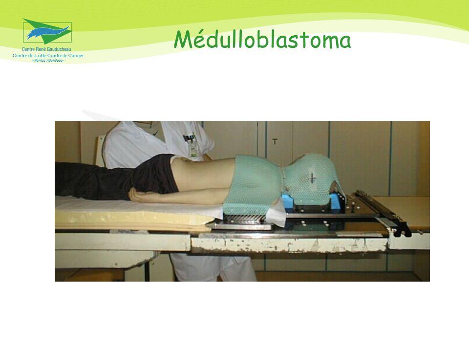 Centre de Lutte Contre le Cancer –Nantes Atlantique– Médulloblastoma