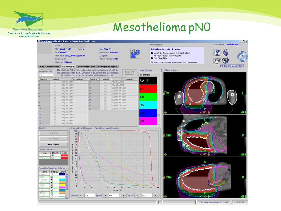 Centre de Lutte Contre le Cancer –Nantes Atlantique– Mesothelioma pN0