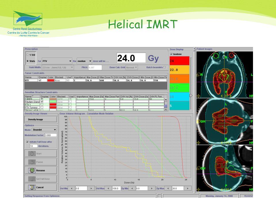 Centre de Lutte Contre le Cancer –Nantes Atlantique– Helical IMRT