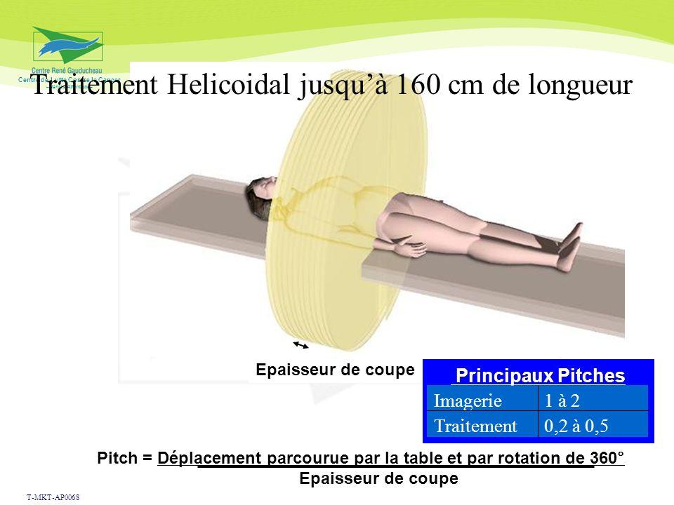 Centre de Lutte Contre le Cancer –Nantes Atlantique– Low doses and IMRT: V2Gy Conformal 2 fields Conformal 5 fields IMRT 5 fields Helical IMRT p Face 2Gy31%90%91%100%<0.0001 Whole ventricular irradiation: 5 children