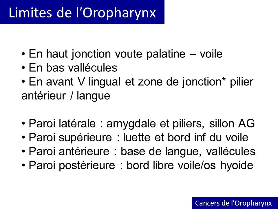 Limites de lOropharynx Cancers de lOropharynx En haut jonction voute palatine – voile En bas vallécules En avant V lingual et zone de jonction* pilier