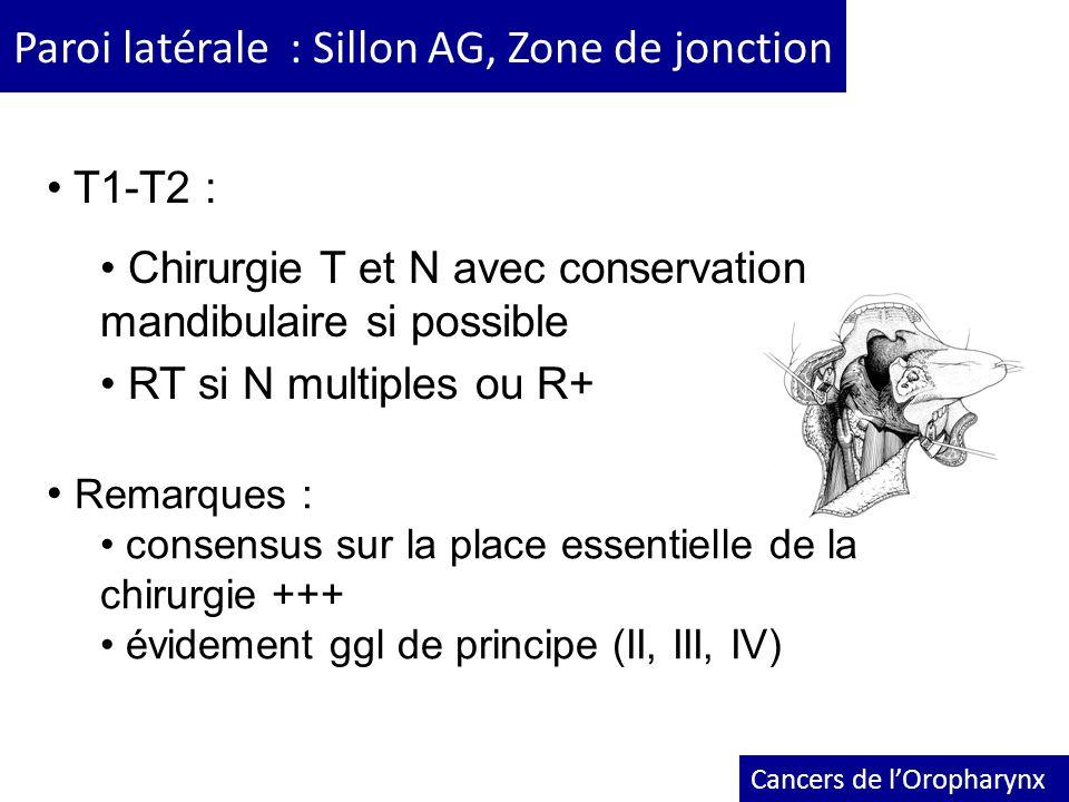 Paroi latérale : Sillon AG, Zone de jonction Cancers de lOropharynx T1-T2 : Chirurgie T et N avec conservation mandibulaire si possible RT si N multip