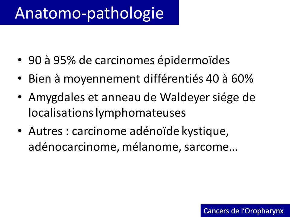 Anatomo-pathologie 90 à 95% de carcinomes épidermoïdes Bien à moyennement différentiés 40 à 60% Amygdales et anneau de Waldeyer siége de localisations