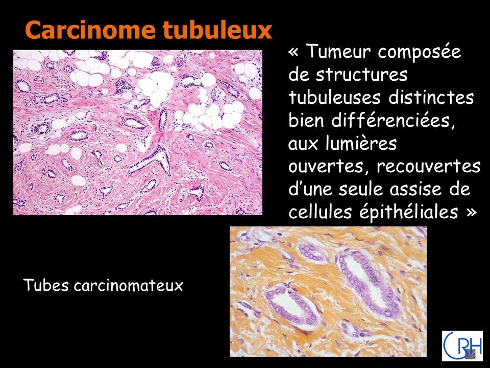 Carcinome tubuleux Tubes carcinomateux « Tumeur composée de structures tubuleuses distinctes bien différenciées, aux lumières ouvertes, recouvertes du