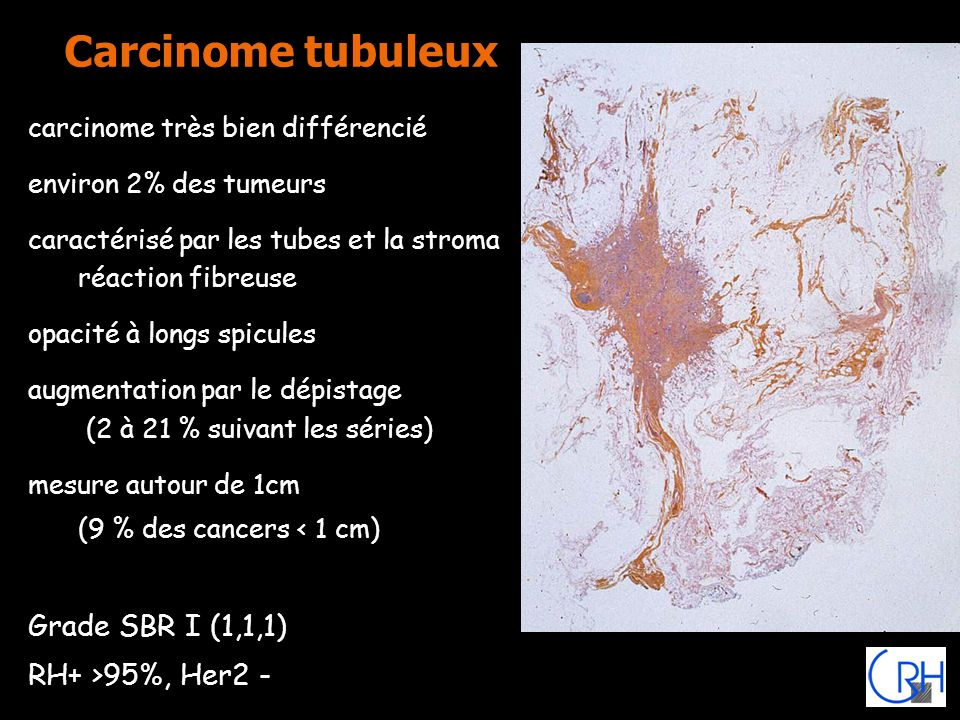 Carcinome tubuleux carcinome très bien différencié environ 2% des tumeurs caractérisé par les tubes et la stroma réaction fibreuse opacité à longs spi
