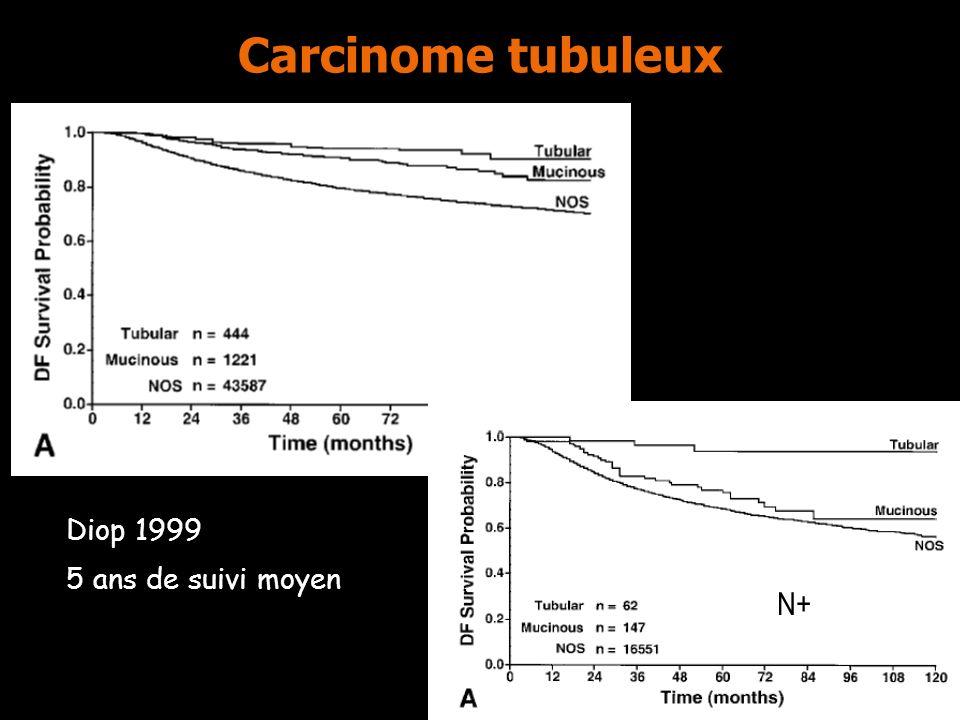 Carcinome tubuleux Diop 1999 5 ans de suivi moyen N- N+