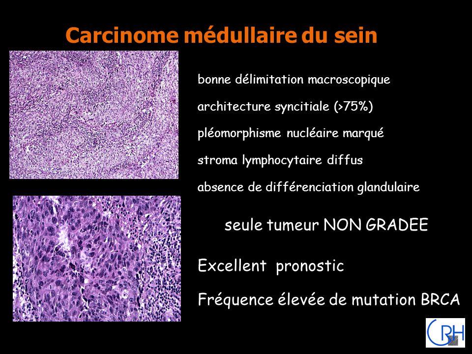 Carcinome médullaire du sein bonne délimitation macroscopique architecture syncitiale (>75%) pléomorphisme nucléaire marqué stroma lymphocytaire diffu