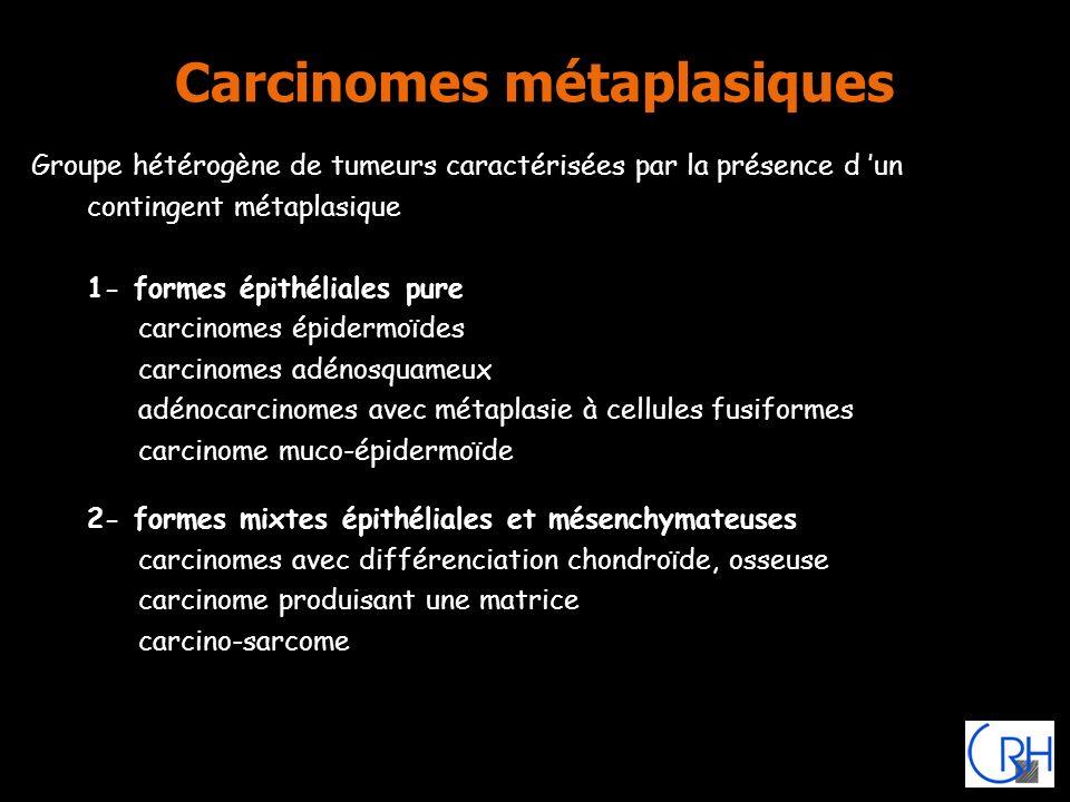 Carcinomes métaplasiques Groupe hétérogène de tumeurs caractérisées par la présence d un contingent métaplasique 1- formes épithéliales pure carcinome