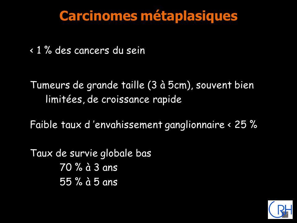 Carcinomes métaplasiques < 1 % des cancers du sein Tumeurs de grande taille (3 à 5cm), souvent bien limitées, de croissance rapide Faible taux d envah