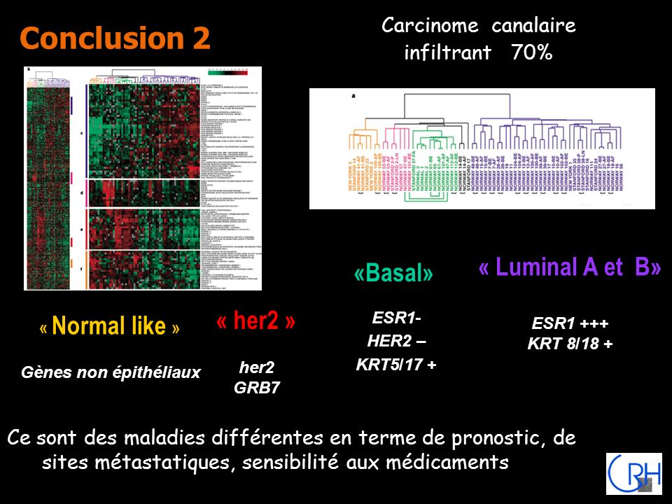 Conclusion 2 Carcinome canalaire infiltrant 70% «Basal» ESR1- HER2 – KRT5/17 + « Luminal A et B» ESR1 +++ KRT 8/18 + « her2 » her2 GRB7 « Normal like