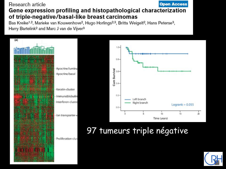 97 tumeurs triple négative