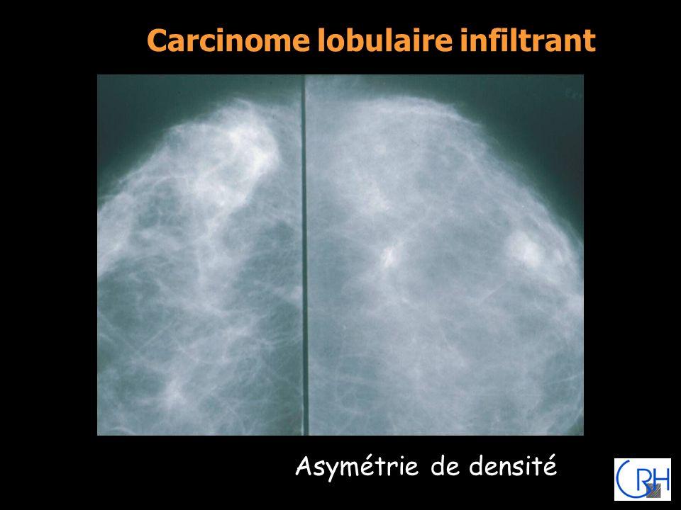Carcinome lobulaire infiltrant Asymétrie de densité