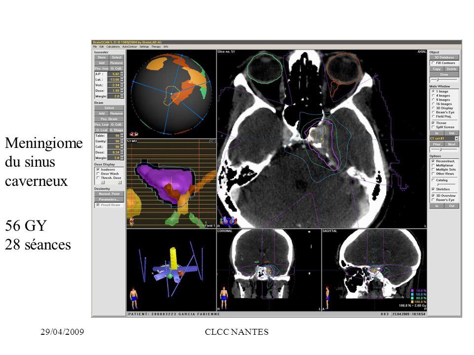 29/04/2009CLCC NANTES 56 GY 28 séances Meningiome du sinus caverneux
