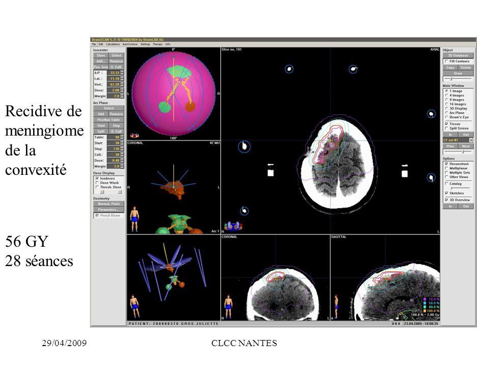 29/04/2009CLCC NANTES 56 GY 28 séances Recidive de meningiome de la convexité