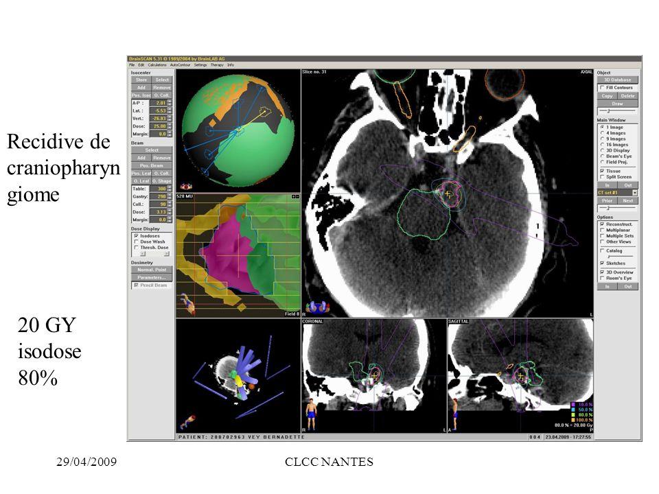 29/04/2009CLCC NANTES 20 GY isodose 80% Recidive de craniopharyn giome
