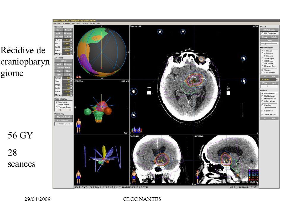29/04/2009CLCC NANTES 56 GY 28 seances Récidive de craniopharyn giome