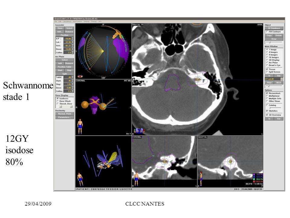 29/04/2009CLCC NANTES Adénomes hypophysaires 2 objectifs –contrôle du volume tumoral (85% de contrôle) –contrôle de la sécrétion hormonale (50% cushing et acromégalie,25% prolactinome pour des valeur de 15 GY isodose 50% Organes critiques: voies optiques la chirurgie reste le premier traitement