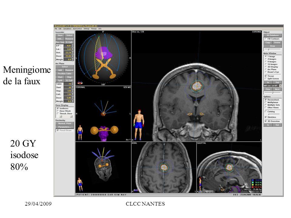 29/04/2009CLCC NANTES 20 GY isodose 80% Meningiome de la faux