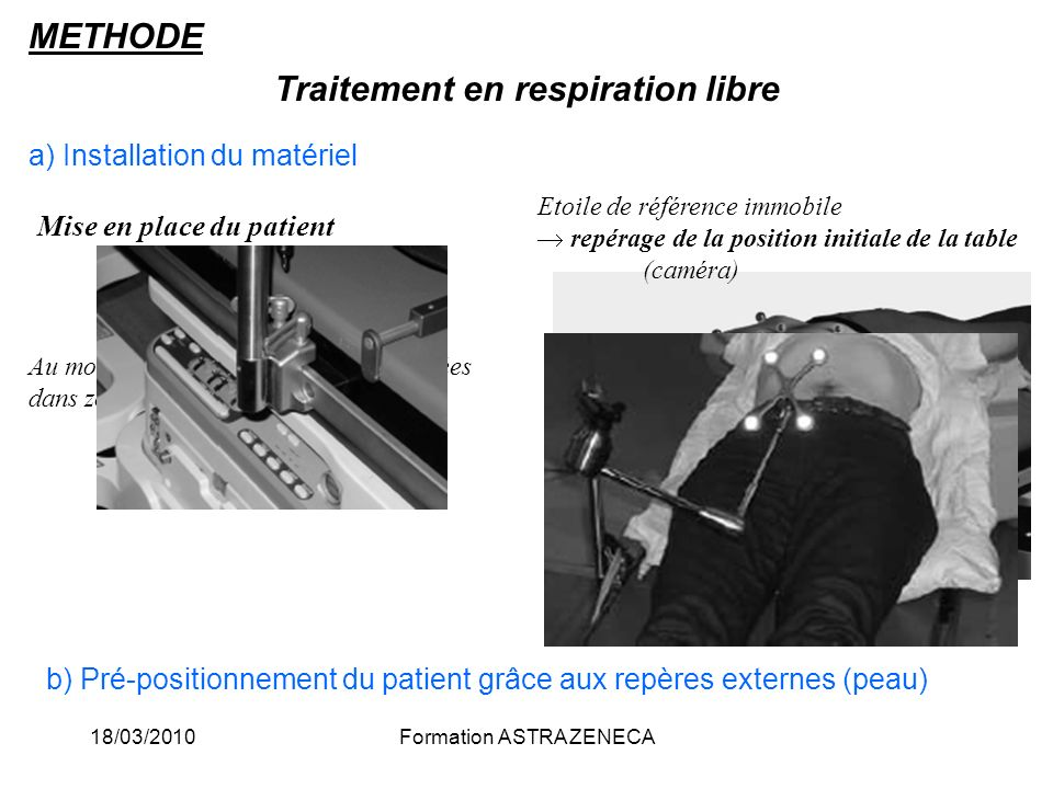 18/03/2010Formation ASTRA ZENECA Traitement en respiration libre a) Installation du matériel Mise en place du patient Au moins 4 boules réfléchissante