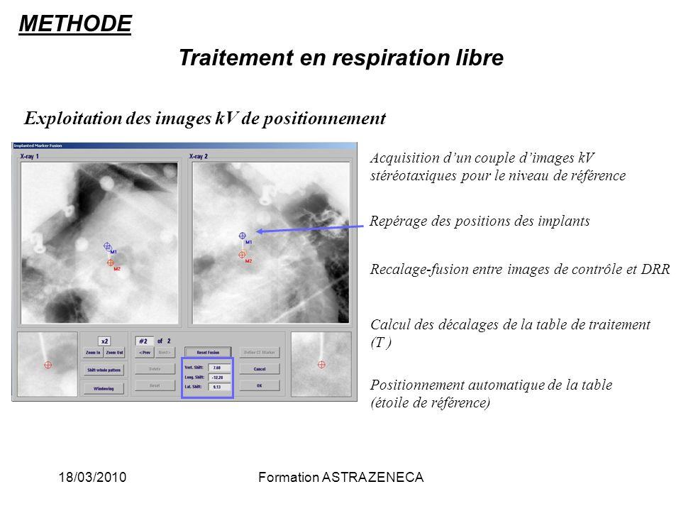 18/03/2010Formation ASTRA ZENECA Traitement en respiration libre Acquisition dun couple dimages kV stéréotaxiques pour le niveau de référence Repérage