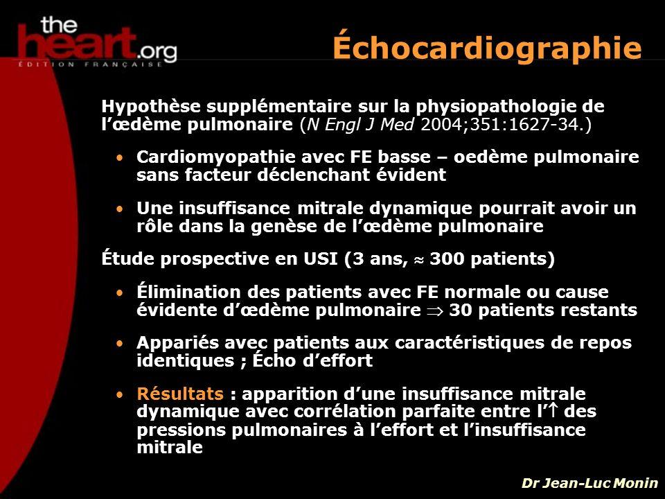 Hypothèse supplémentaire sur la physiopathologie de lœdème pulmonaire (N Engl J Med 2004;351:1627-34.) Cardiomyopathie avec FE basse – oedème pulmonai
