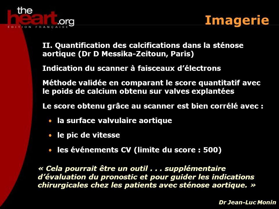 II. Quantification des calcifications dans la sténose aortique (Dr D Messika-Zeitoun, Paris) Indication du scanner à faisceaux délectrons Méthode vali