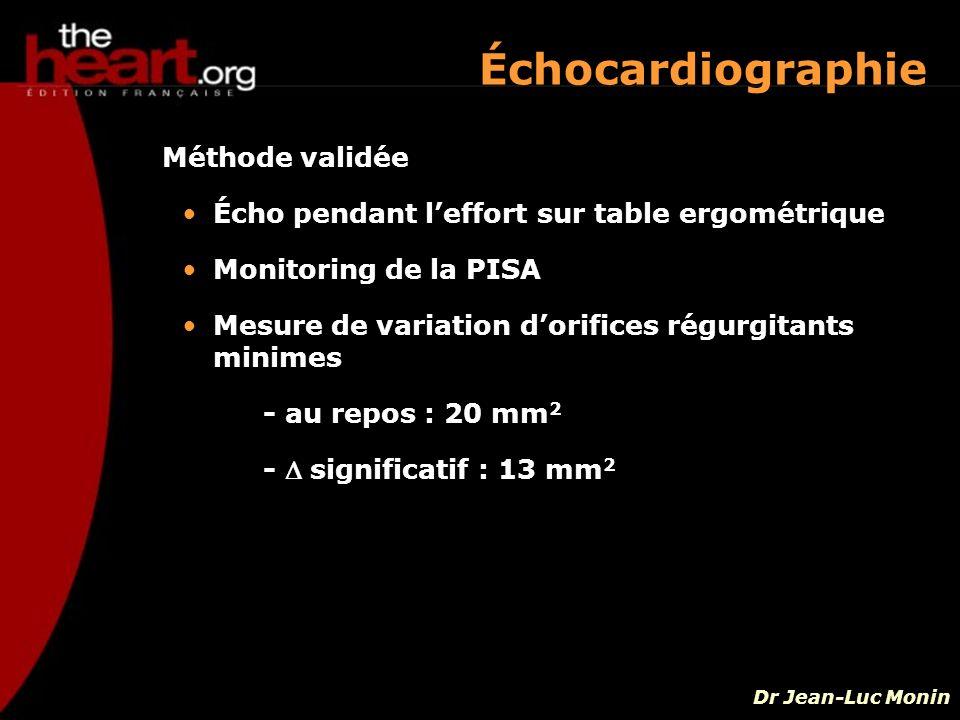 Méthode validée Écho pendant leffort sur table ergométrique Monitoring de la PISA Mesure de variation dorifices régurgitants minimes - au repos : 20 m
