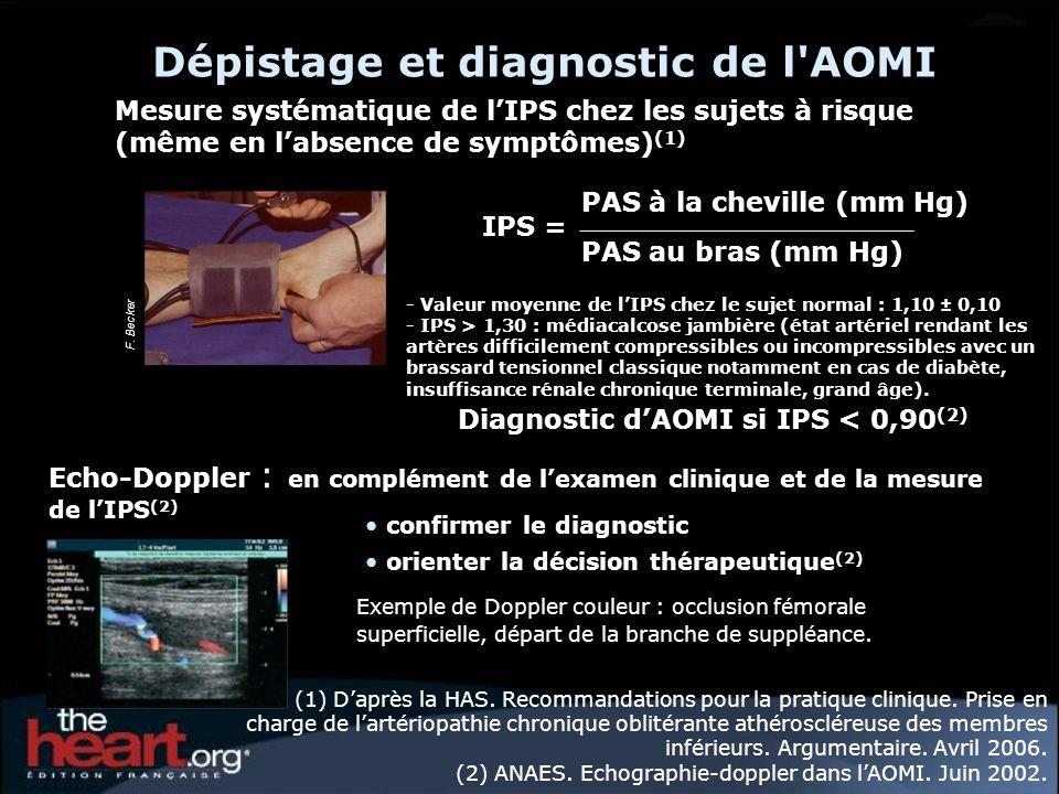 Dépistage et diagnostic de l'AOMI Mesure systématique de lIPS chez les sujets à risque (même en labsence de symptômes) (1) Echo-Doppler : en complémen
