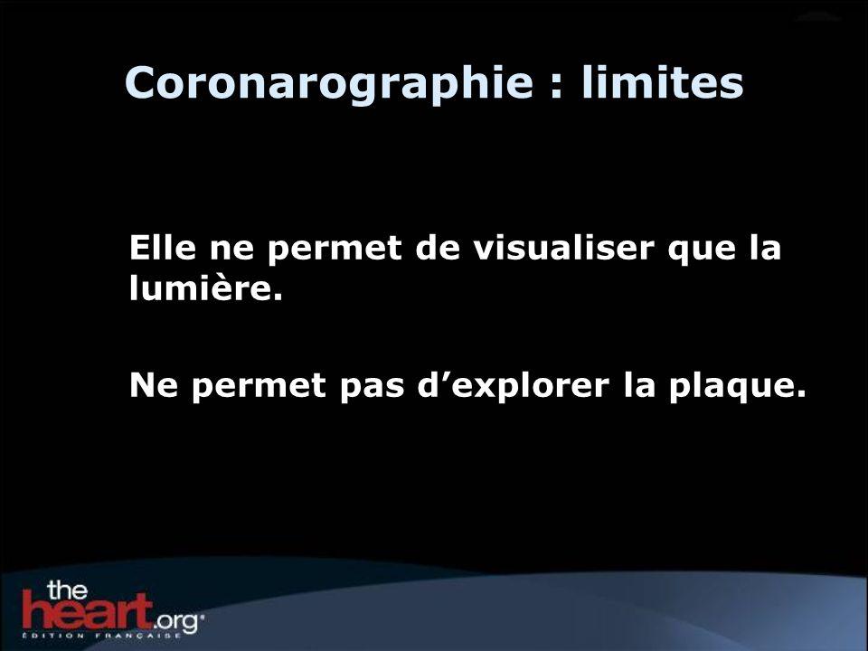 Coronarographie : limites Elle ne permet de visualiser que la lumière. Ne permet pas dexplorer la plaque.