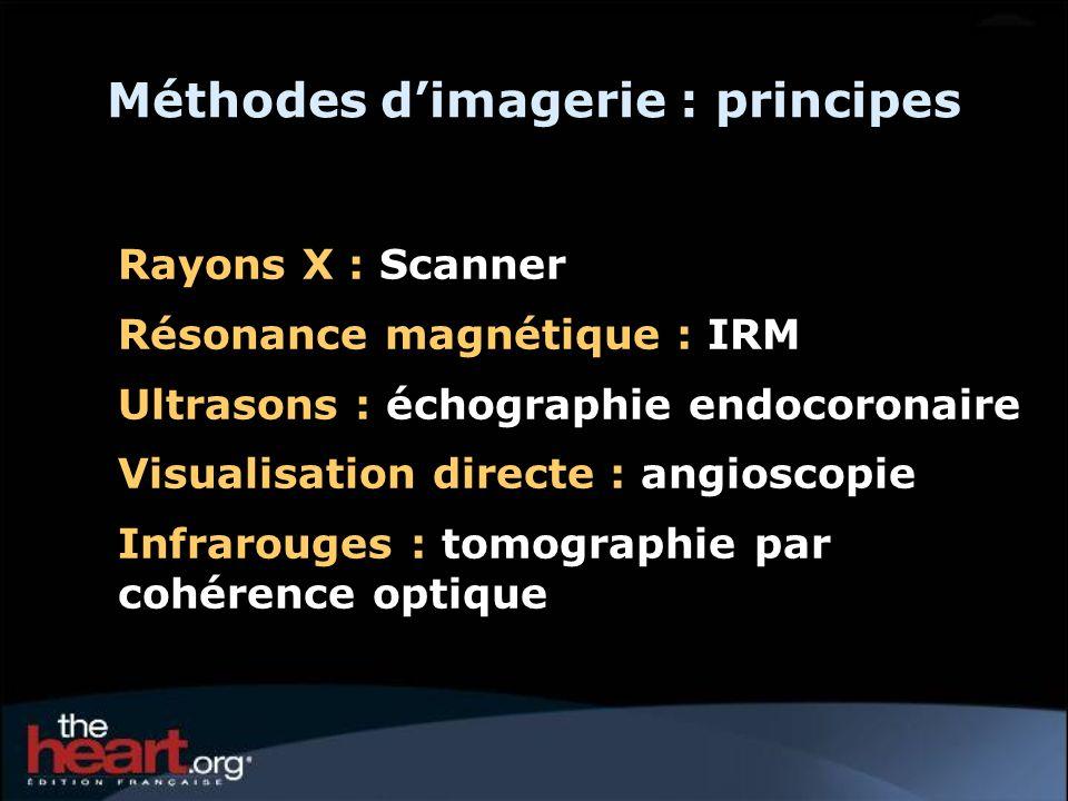 Méthodes dimagerie : principes Rayons X : Scanner Résonance magnétique : IRM Ultrasons : échographie endocoronaire Visualisation directe : angioscopie
