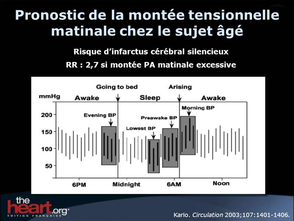 MAPA non-dipper. : Mme F… PA moyenne jour : 131/64 nuit : 136/62 24H : 132/78 mmHg