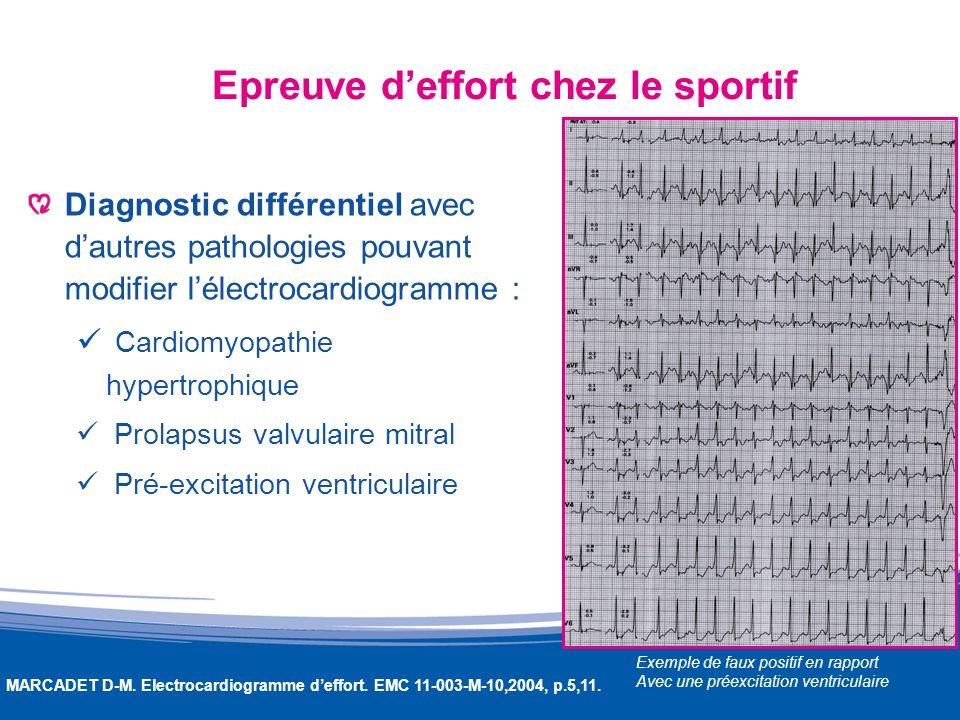 Epreuve deffort chez le sportif Diagnostic différentiel avec dautres pathologies pouvant modifier lélectrocardiogramme : Cardiomyopathie hypertrophiqu