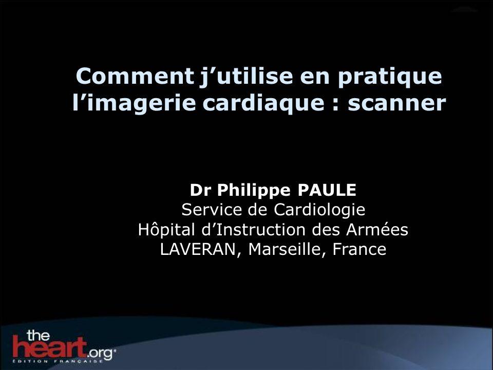 Comment jutilise en pratique limagerie cardiaque : scanner Dr Philippe PAULE Service de Cardiologie Hôpital dInstruction des Armées LAVERAN, Marseille