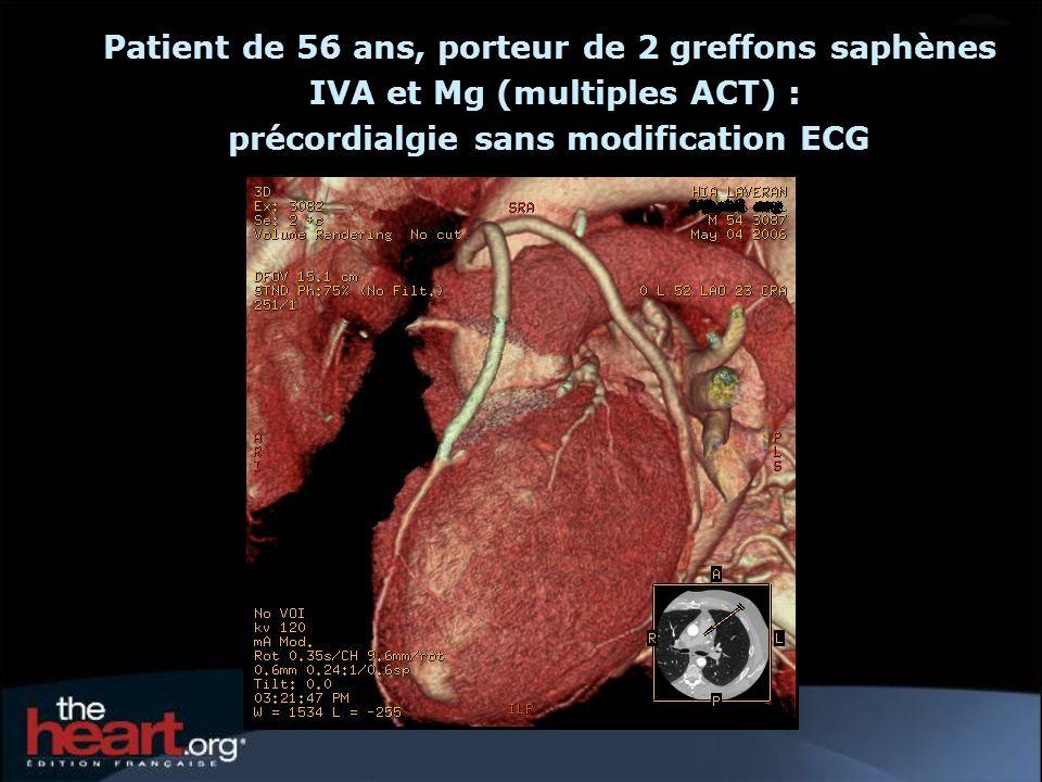 symptomatiques avec forte probabilité surtout SCA asymptomatiques et faible probabilité Mauvaises indications Ne pas retarder une coronarographie C