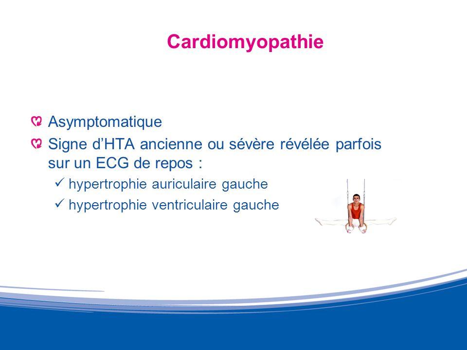 Échocardiogramme du sportif dendurance DTDVG = 73 mm