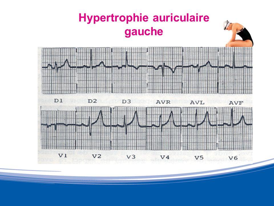 Cœur dAthlète: Echocardiographie Méta analyse de Pluim (59 études, 1451 athlètes) Modification de structure sans modification de la fonction Lépaisseur relative* est fonction du type de sport pratiqué.
