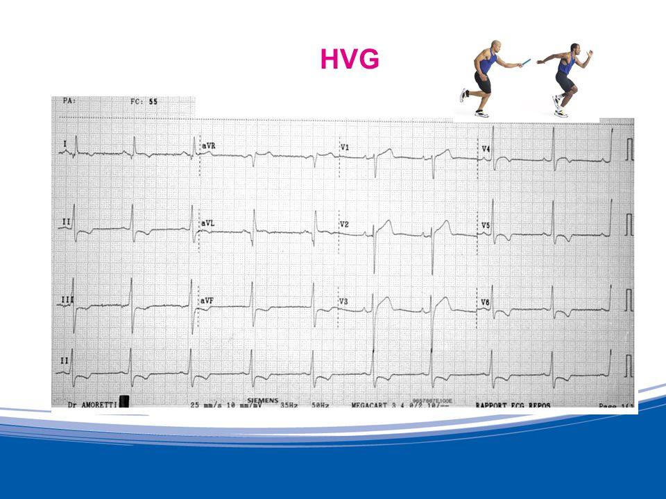 Cardiomyopathie Souvent lECG de repos est pris en défaut ECG moins sensible que échocardiogramme trans-thoracique Échocardiogramme indiqué si ECG anormal si doute devant une HTA ancienne ou sévère MARON.