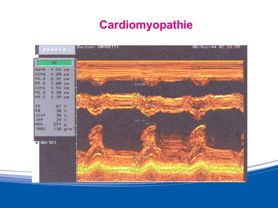 Conclusion LHTA entraine une HVG pathologique réversible avec une activité sportive en endurance associée si nécessaire à un traitement médical Le sport intense entraine une HVG physiologique réversible à larrêt de lactivité