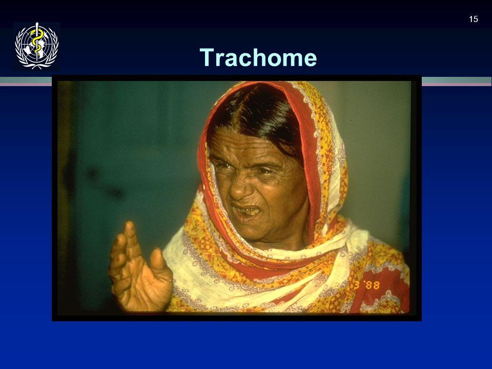 15 Trachome