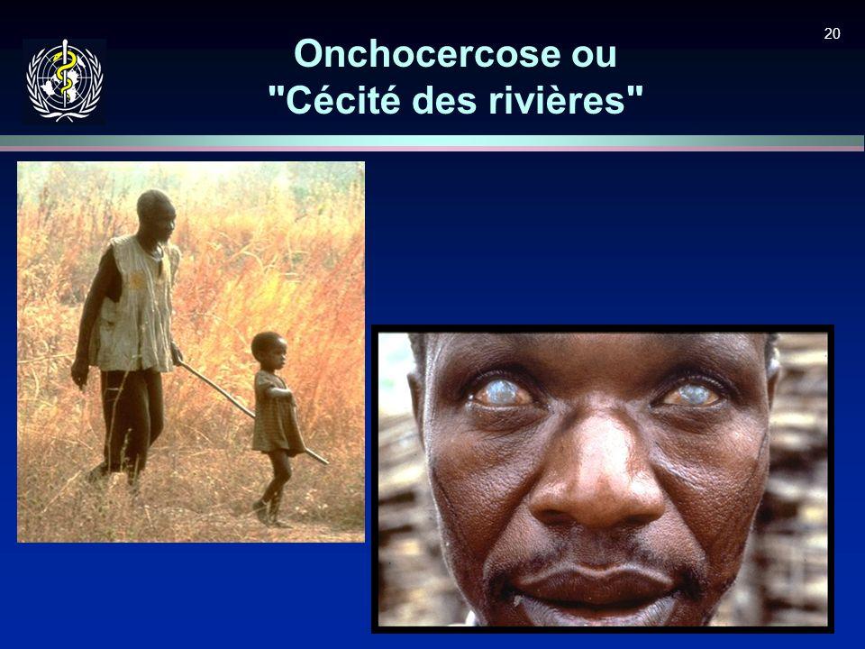 20 Onchocercose ou