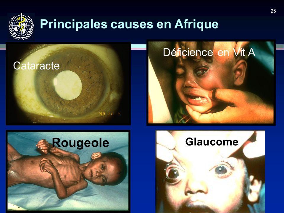 25 Principales causes en Afrique Rougeole Glaucome Cataracte Déficience en Vit A
