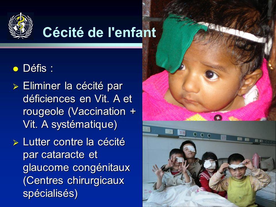 26 Cécité de l'enfant l Défis : Eliminer la cécité par déficiences en Vit. A et rougeole (Vaccination + Vit. A systématique) Eliminer la cécité par dé