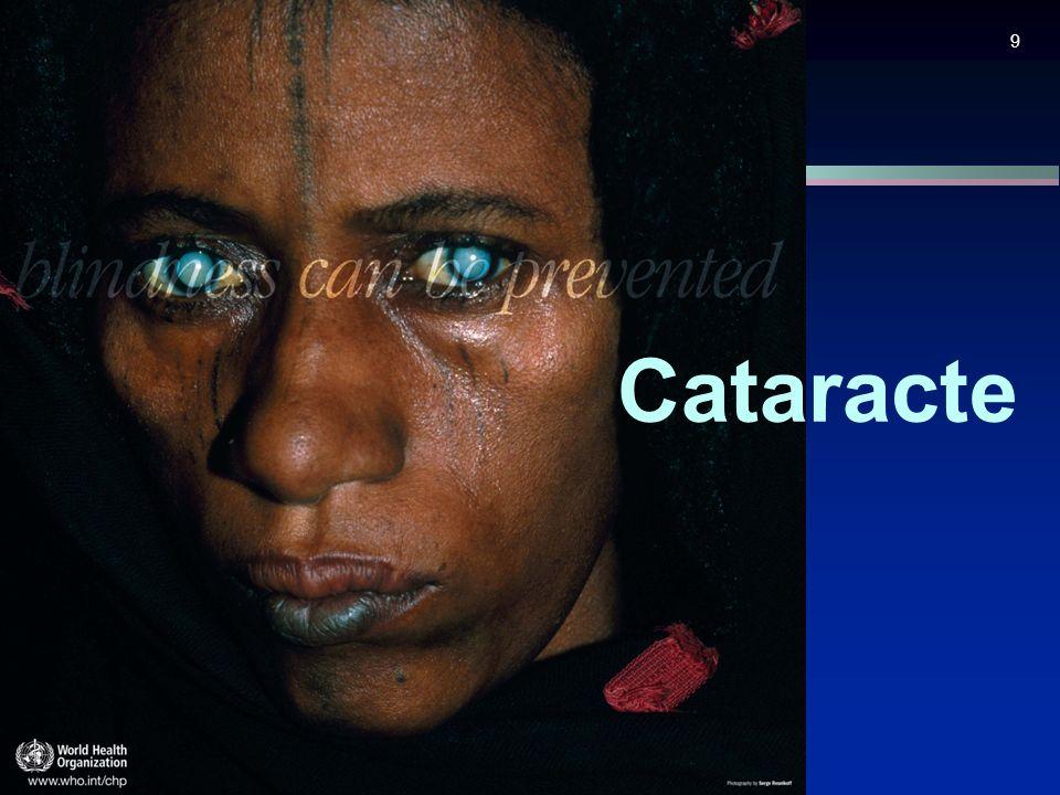 9 Cataracte