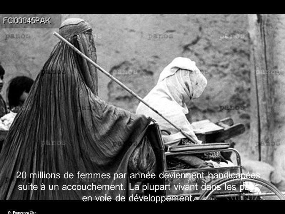 On estime à 300 millions le nombre de femmes handicapées dans le monde © G.M. B. Akash