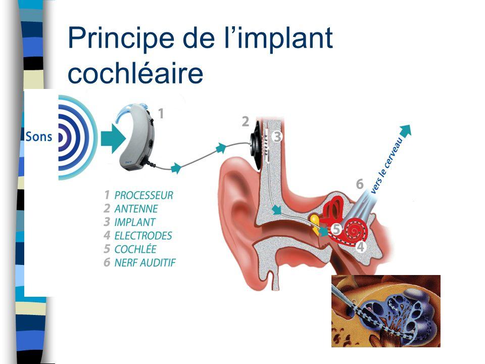 Résultats Compte tenu de l efficacité et de la fiabilité de l Implant Cochléaire, ses indications s élargissent –âge > 60 ans et < 12 mois –implantation bilatérale –surdité moins profonde –handicaps associés.